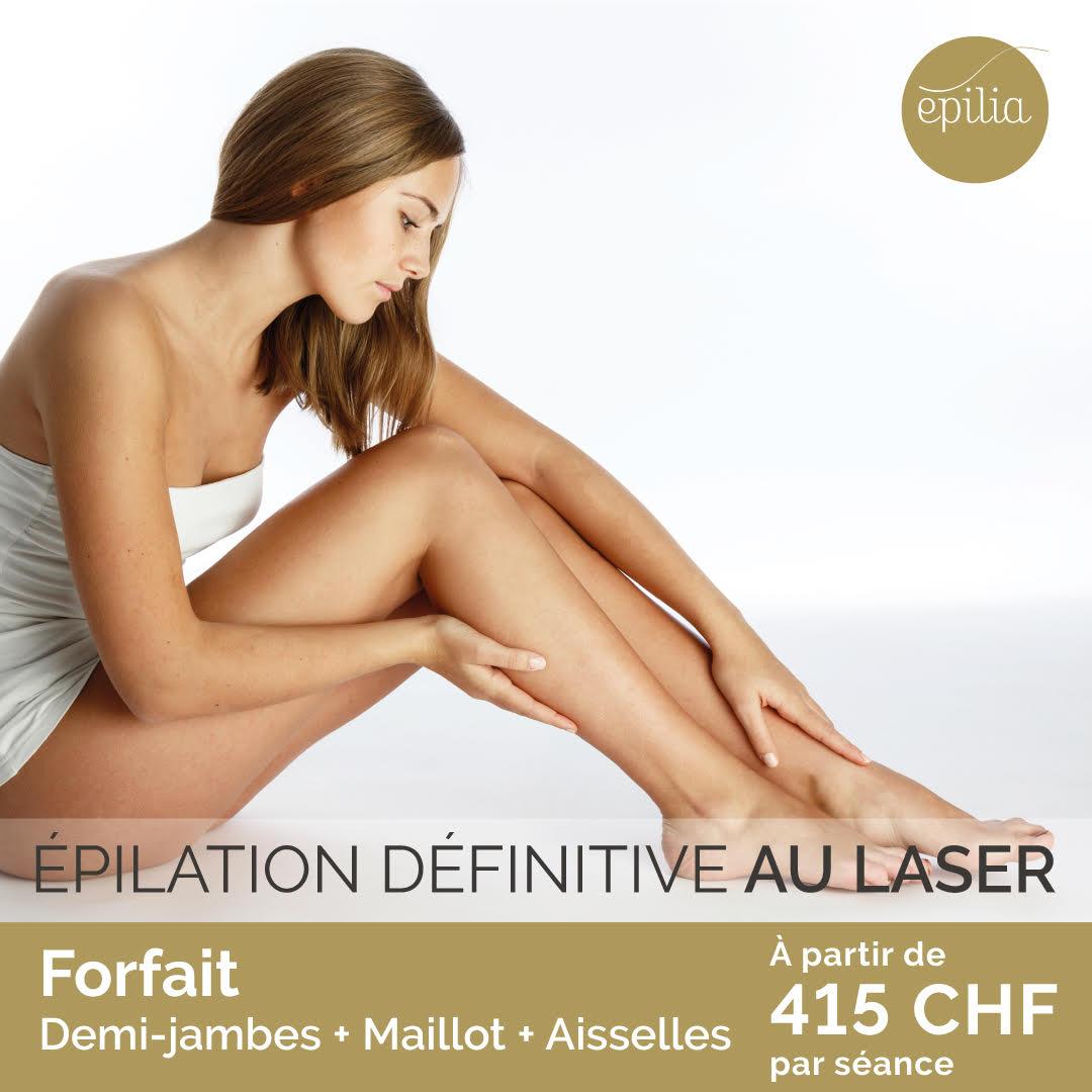 epilation laser definitive au laser