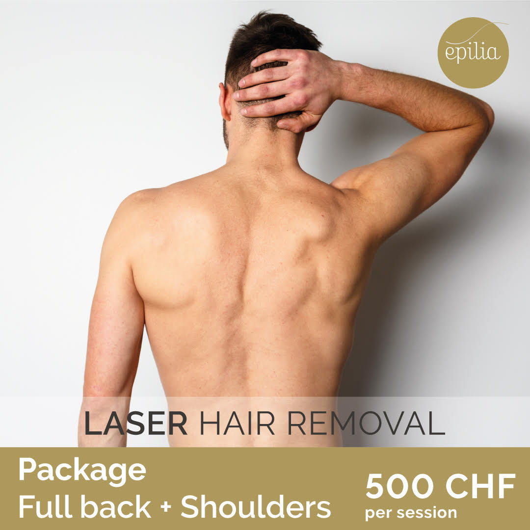 laser hair removal lausanne